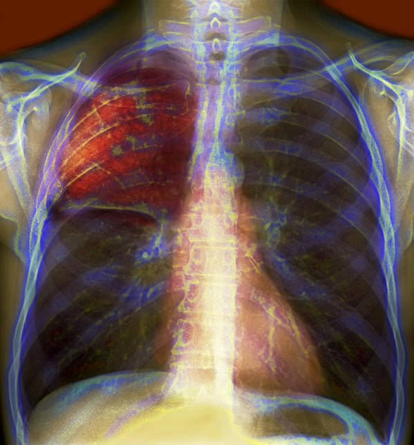 Infectious Poster featuring the photograph Pneumonia, X-ray by Du Cane Medical Imaging Ltd
