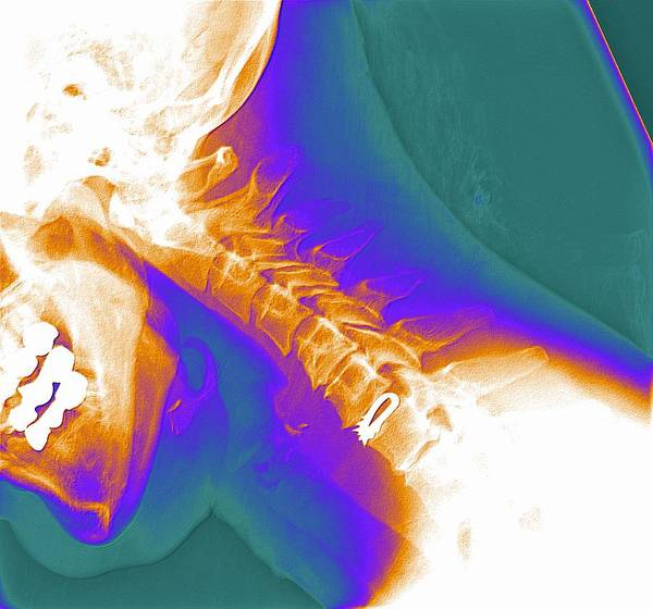 Artificial Implant Poster featuring the photograph Artificial Cervical Disc, X-ray by Pasieka
