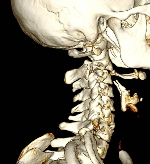 Fracture Poster featuring the photograph Broken Neck, 3d Ct Scan by Du Cane Medical Imaging Ltd