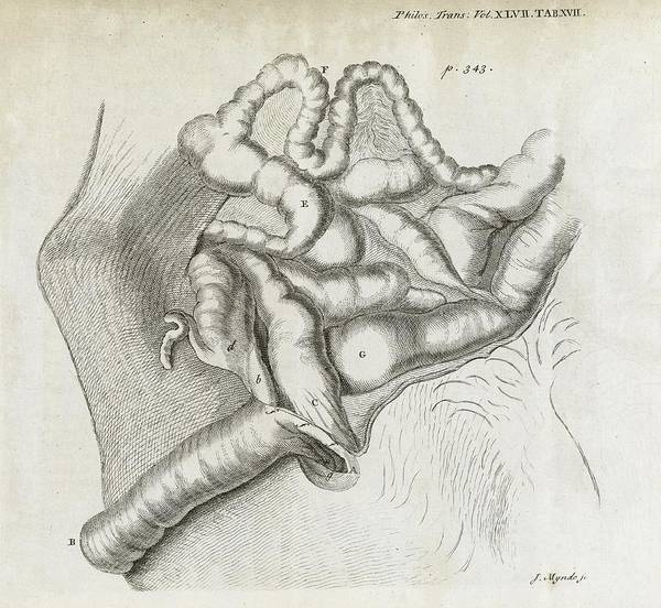 Disorder Poster featuring the photograph Fistula And Hernia, 18th Century by Middle Temple Library