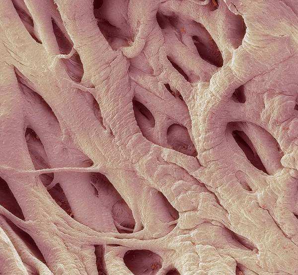Electron Microscope Poster featuring the photograph Heart Strings, Sem by Steve Gschmeissner