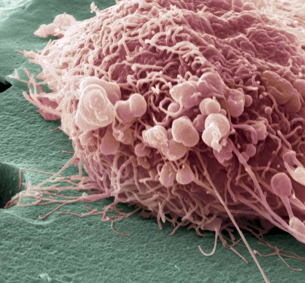Breast Cancer Poster featuring the photograph Migrating Breast Cancer Cell, Sem by Steve Gschmeissner