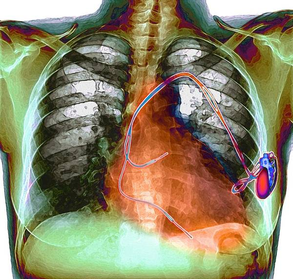 Pump Poster featuring the photograph Heart Pacemaker, X-ray by Du Cane Medical Imaging Ltd