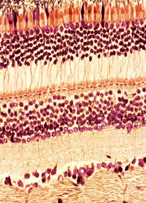 Retina Art Print featuring the photograph Retina, Light Micrograph by Steve Gschmeissner