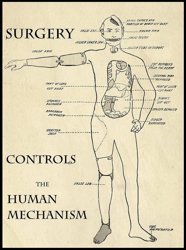 Medical Art Print featuring the digital art Surgery Controls The Human Mechanism  1906 by Daniel Hagerman