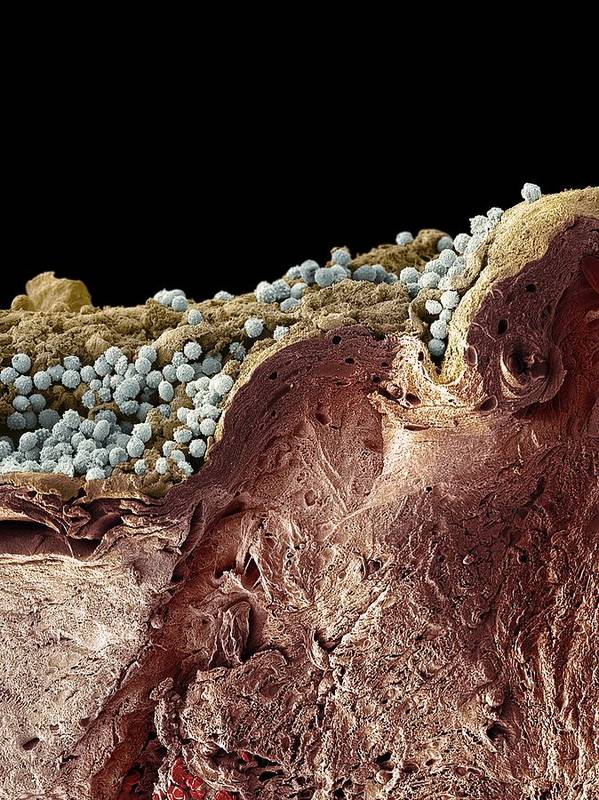 Coloured Art Print featuring the photograph Pyoderma Skin Disease, Sem by Steve Gschmeissner