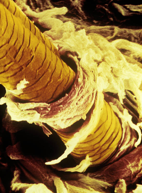 Magnified Image Art Print featuring the photograph False-col Sem Of Surface Of Human Skin by Cnri
