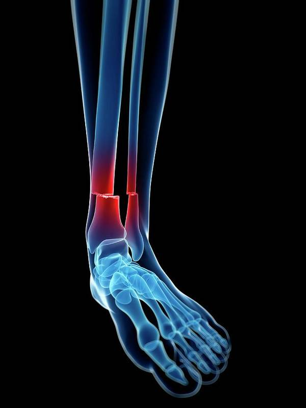 Broken Lower Leg Bones Art Print By Sebastian Kaulitzki