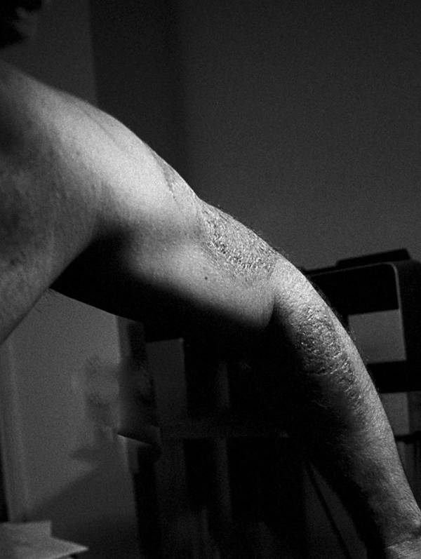 Self Mutilation Art Print featuring the photograph Burnt Arm by John Toxey