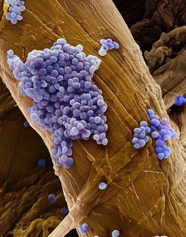 Streptococcus Pneumoniae Art Print featuring the photograph Streptococcus Pneumoniae Bacteria, Sem by Steve Gschmeissner