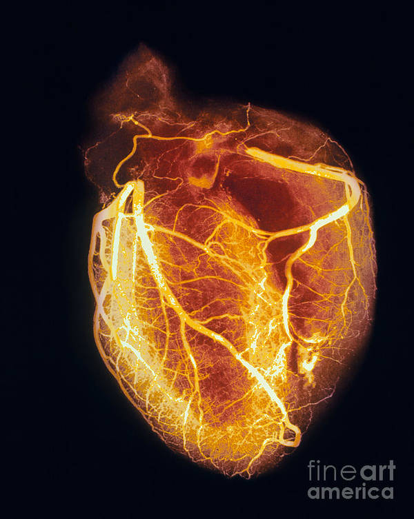 Angiogram Art Print featuring the photograph Colored Arteriogram Of Arteries Of Healthy Heart by Spl