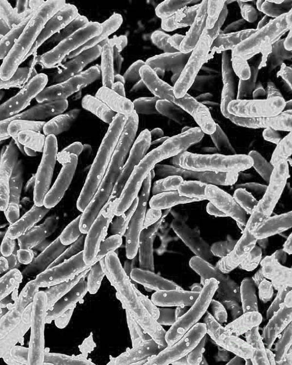 Microbiology Print featuring the photograph Mycobacterium Tuberculosis Bacteria, Sem by Science Source
