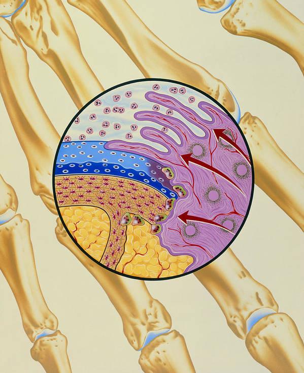 Arthritis Art Print featuring the photograph Artwork Of The Mechanism Of Rheumatoid Arthritis by John Bavosi