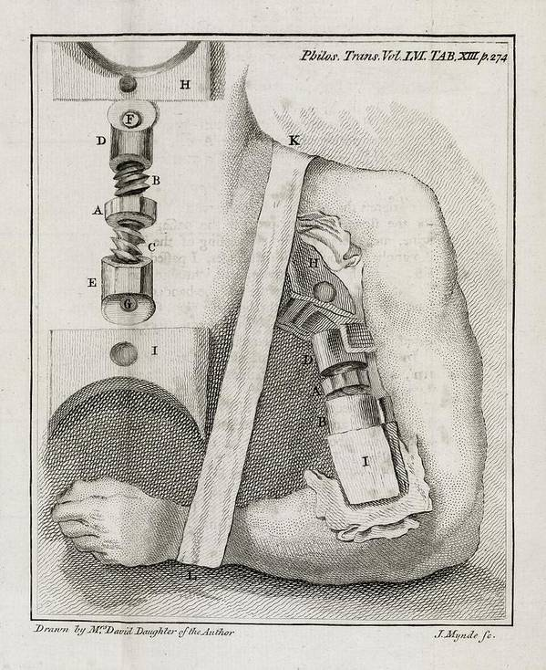 Human Print featuring the photograph Bone-setting Mechanism, 18th Century by Middle Temple Library