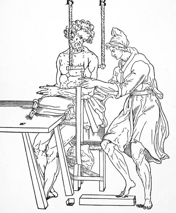 Anatomy Art Print featuring the photograph Bone Fracture Repair by Granger