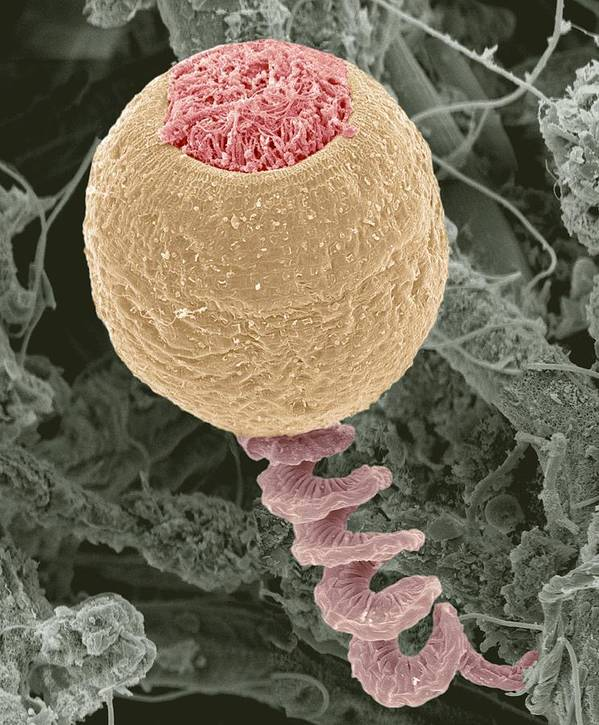 Anchored Print featuring the photograph Vorticella Protozoan, Sem by Steve Gschmeissner