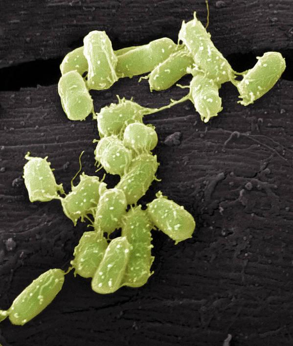 Escherichia Coli Art Print featuring the photograph E. Coli Bacteria, Sem by Steve Gschmeissner