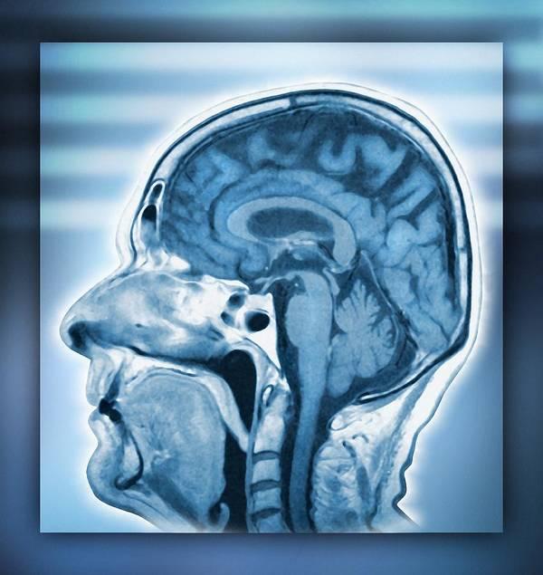 Brain Art Print featuring the photograph Normal Head And Brain, Mri Scan by Miriam Maslo