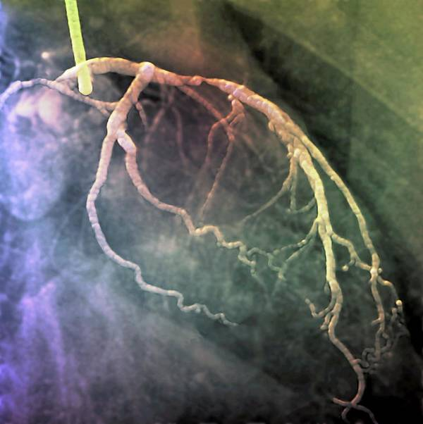 Coloured Angiogram Art Print featuring the photograph Narrowed Heart Artery by Zephyr/science Photo Library