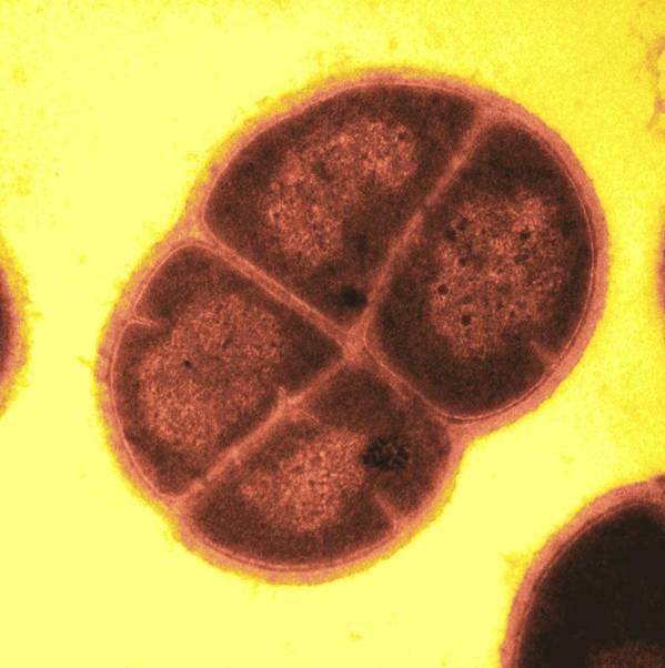Deinococcus Radiodurans Art Print featuring the photograph Radiation Resistant Bacteria, Sem by Michael J Daly