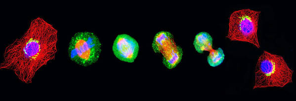 Mitosis Art Print featuring the photograph Cell Mitosis by Thomas Deerinck, Ncmir