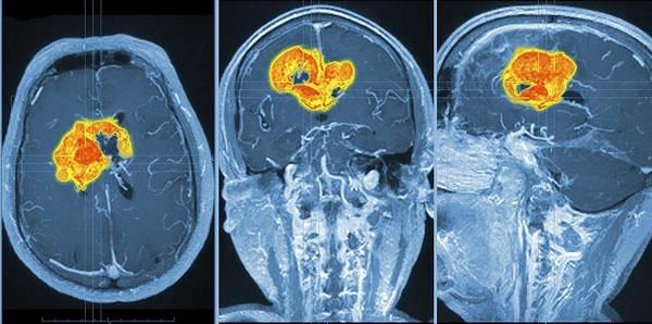 3-d Art Print featuring the photograph Brain Tumour, Mri Scan by Pasieka