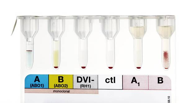Analysis Art Print featuring the photograph Rhesus Test On Blood: Negative Result by Doncaster And Bassetlaw Hospitals