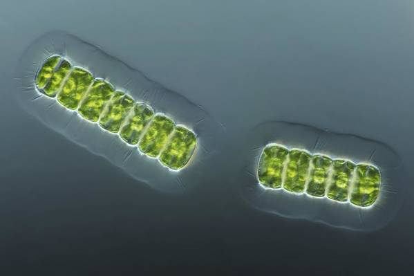 Algae Art Print featuring the photograph Green Algae, Light Micrograph by Frank Fox