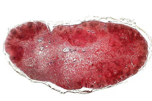 Tissue Art Print featuring the photograph Lymph Gland, Light Micrograph by Dr Keith Wheeler