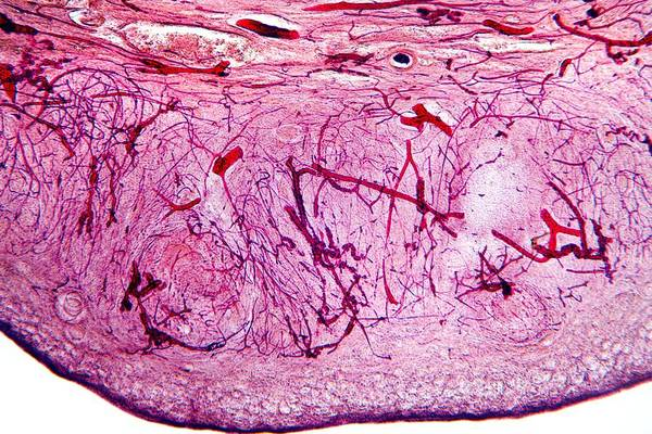 Tissue Art Print featuring the photograph Ovary Tissue, Light Micrograph by Dr Keith Wheeler