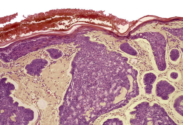 Rodent Ulcer Art Print featuring the photograph Skin Cancer, Light Micrograph by Steve Gschmeissner