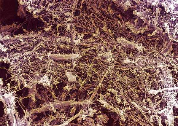 Plywood Art Print featuring the photograph Dry Rot Fungus, Sem by Dr Jeremy Burgess