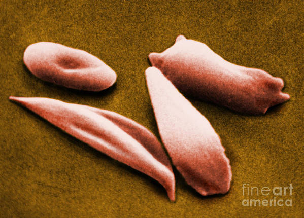 Red Blood Cell Print featuring the photograph Sickle Red Blood Cells by Omikron