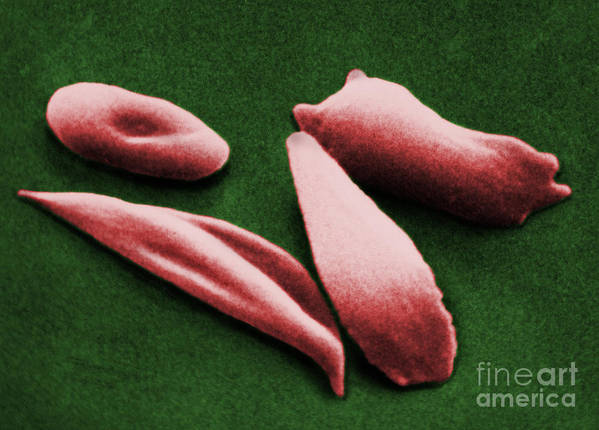 Red Blood Cell Art Print featuring the photograph Sickle Red Blood Cells by Omikron