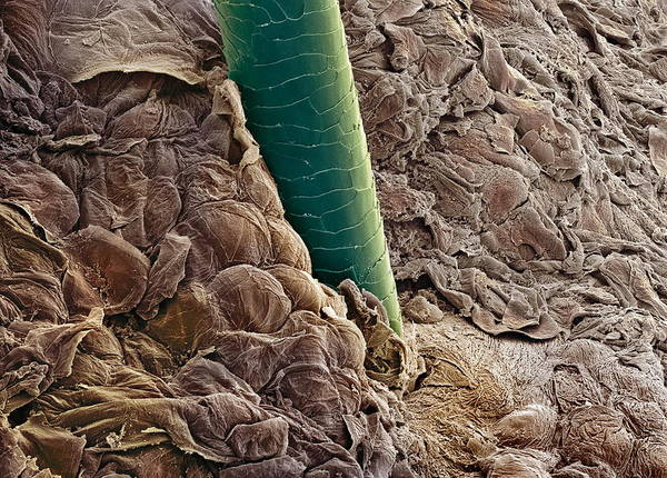 Hair Art Print featuring the photograph Ear Canal, Sem by Steve Gschmeissner