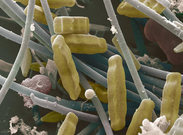 Navicula Sp. Art Print featuring the photograph Sem Of Diatoms And Blue-green Algae by Power And Syred