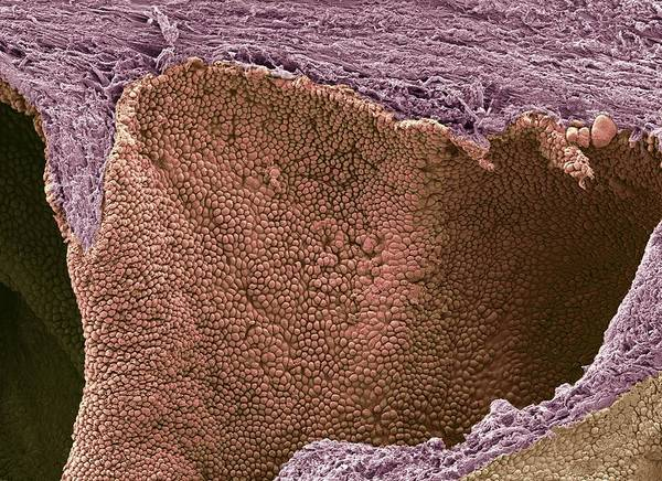Prostate Cancer Art Print featuring the photograph Prostate Cancer, Sem by Steve Gschmeissner