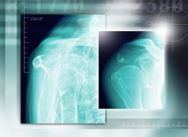 Scapula Art Print featuring the photograph Fractured Shoulder, X-rays by Miriam Maslo