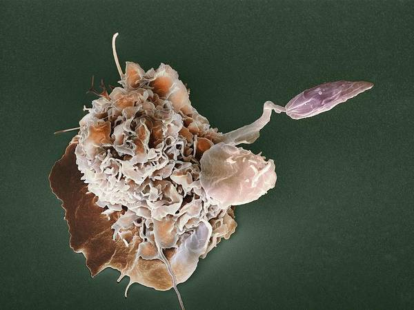 Leishmania Mexicana Art Print featuring the photograph Macrophage Attacking A Foreign Body, Sem by