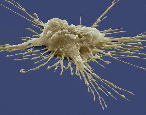 Sem Art Print featuring the photograph Pluripotent Stem Cell, Sem by Steve Gschmeissner