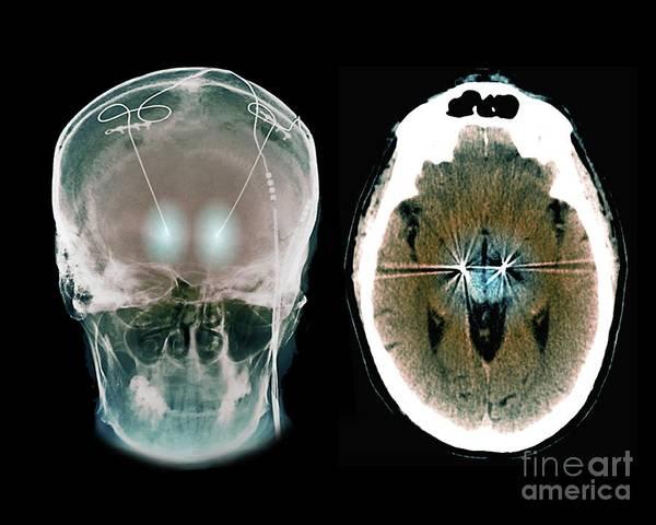 Parkinson's Disease Art Print featuring the photograph Parkinson's Disease Brain Stimulation Electrodes by Zephyr/science Photo Library