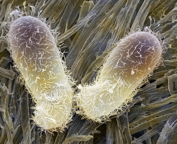 Chilodonella Sp. Art Print featuring the photograph Chilodonella Ciliate Protozoan, Sem by Power And Syred