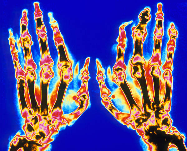 Gout Art Print featuring the photograph Coloured X-ray Of Hand In Gouty Arthritis by Pasieka