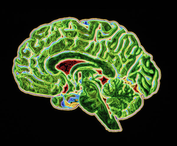 Brain Scan Art Print featuring the photograph Coloured Ct Scan Of A Healthy Brain (side View) by Pasieka