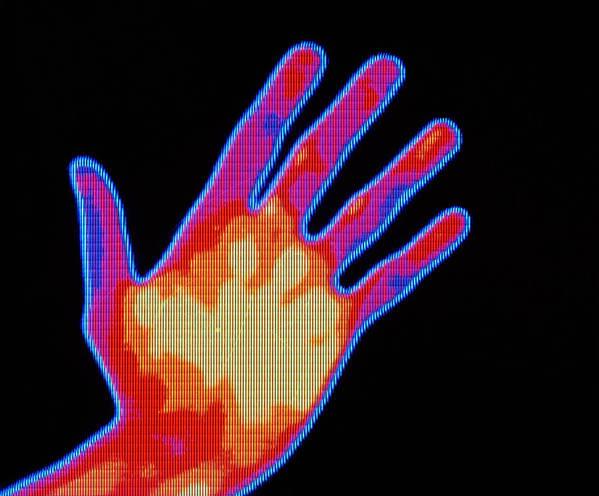 Thermograph Of Smoker's Hand Art Print featuring the photograph Non-smoker Hand Thermogram by Pasieka