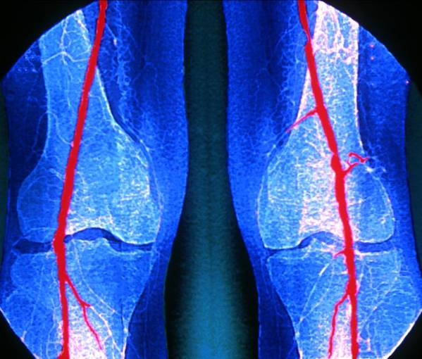 Stenosis Art Print featuring the photograph Artery Stenosis by Zephyr/science Photo Library