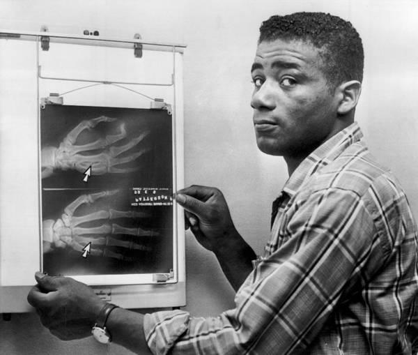 Retro Images Archive Art Print featuring the photograph Floyd Patterson Looking At X Ray by Retro Images Archive