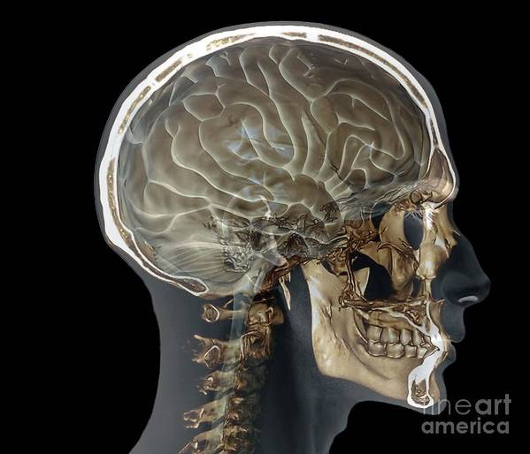 Normal Head And Neck, Mri And 3d Ct Scans Art Print by Zephyr