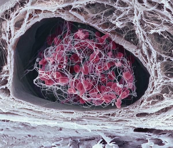 Biological Art Print featuring the photograph Blood Clot by Science Photo Library