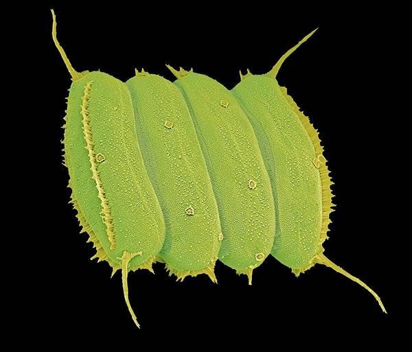 Alga Art Print featuring the photograph Scenedesmus Algae, Sem by Science Photo Library